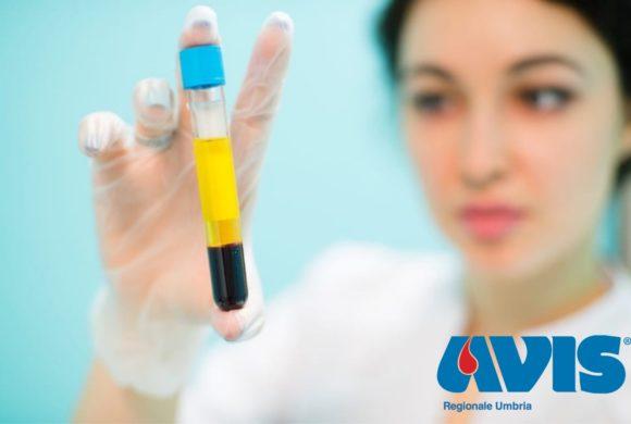 CENTRO REGIONALE SANGUE e AVIS REGIONALE UMBRIA uniti per il Reclutamento dei potenziali donatori di plasma iperimmune come arma contro la polmonite da virus COVID-19